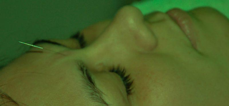 espaco-bem-viver-acupuntura